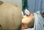 Tưởng béo bụng, đi khám mới phát hiện khối u gần 20kg trong người